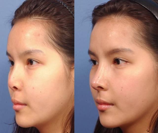 鼻部综合整形效果如何?