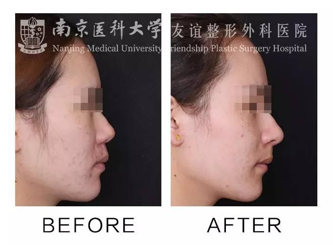 综合隆鼻会留疤吗?
