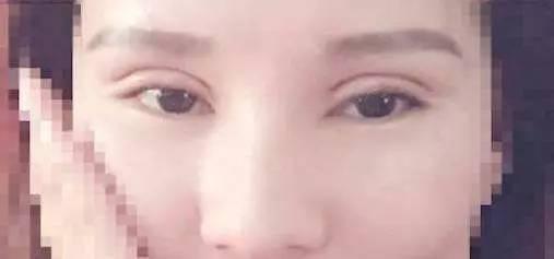 双眼皮手术后几周能完全恢复?