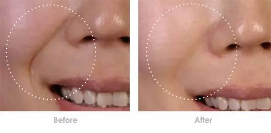 除皱针去除嘴角纹效果怎么样
