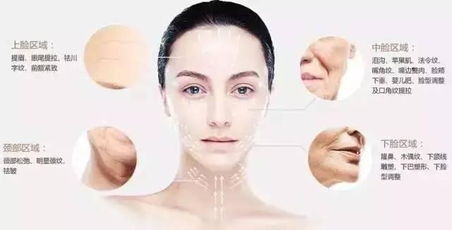 面部线雕提升的效果好吗?