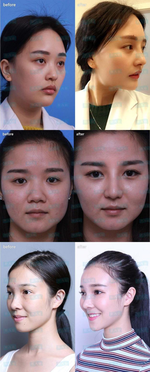 韩国哪个医院做隆鼻效果好