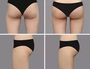 自体脂肪丰臀术|因为完美蜜桃臀,她光自拍1个月能赚60万!