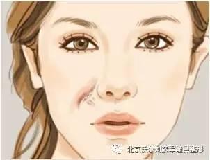 鼻部高度还可以,鼻头有点像是蒜头鼻,该怎么解决?