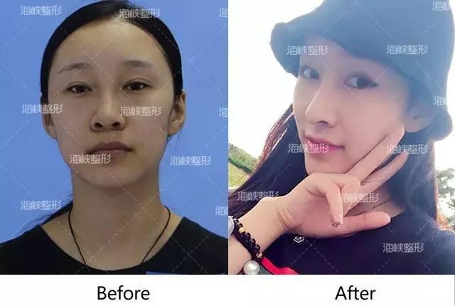 隆鼻假体需要取出吗?我想要一劳永逸才做的假体隆鼻,为什么还说10年之后要替换假体?