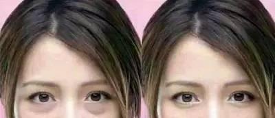 卧蚕和眼袋有什么区别?