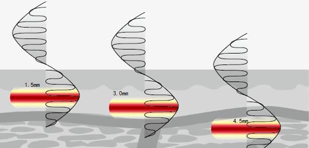 什么是筋膜层衰老?