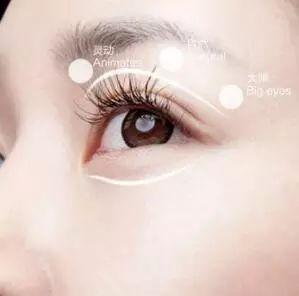 哪里做双眼皮效果好?
