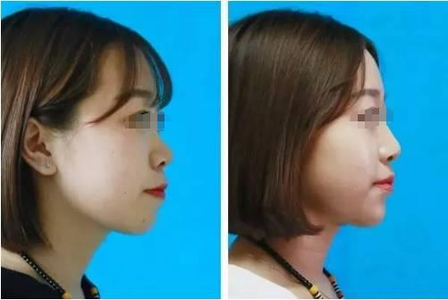 玻尿酸填充鼻部可以维持多久?