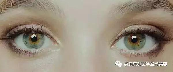 开眼角会不会留疤啊?