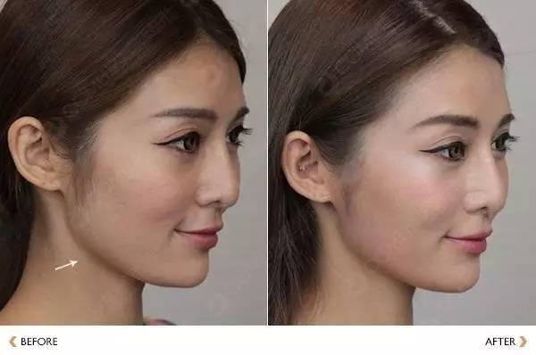 打瘦脸针需要恢复期吗?