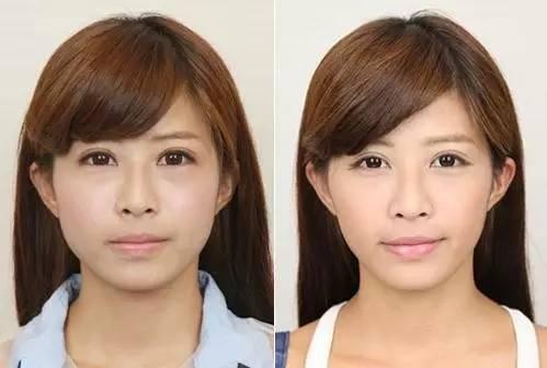 美国botox瘦脸的效果好吗?