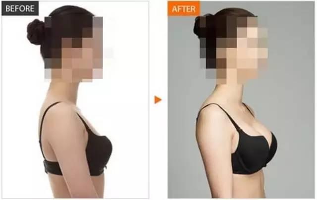 自体脂肪面部填充脸会变大吗?