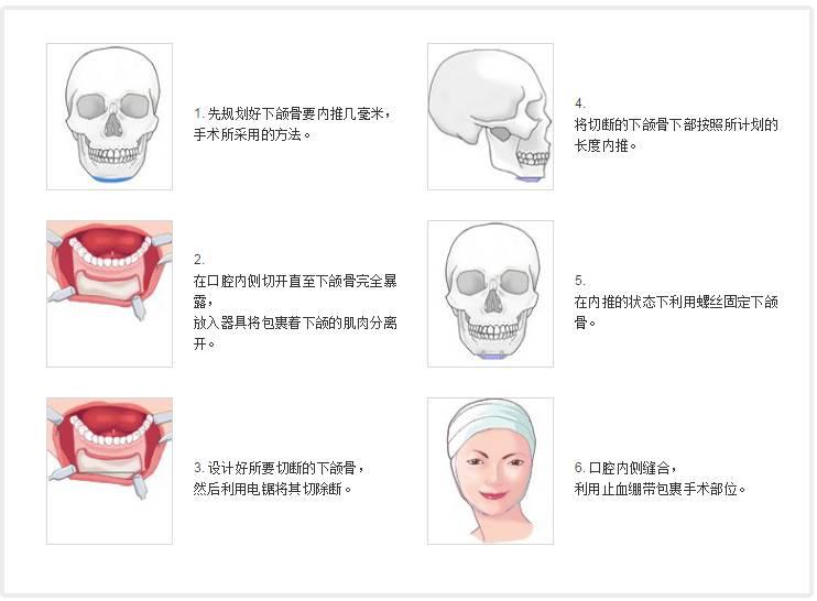 韩国BIO整形做下颌前突矫正手术效果好不好?