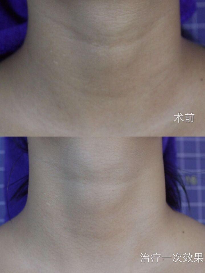 韩美嗨体能彻底去除颈纹吗