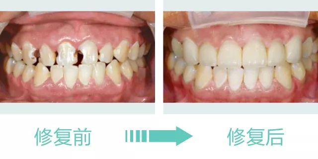 牙齿炫彩美白的效果好不好?