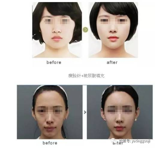 瘦脸针效果可以保持多长时间?