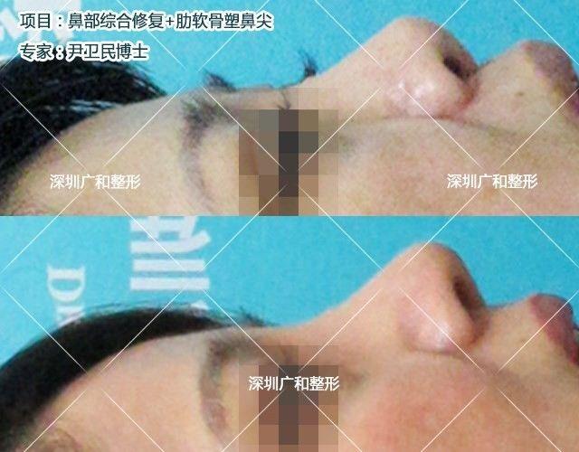 哪里做鼻子修复手术效果好?