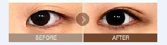 开眼角可以改善眼距宽吗?