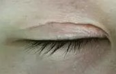 徐州心源整形美容做眼睛修复怎么样?