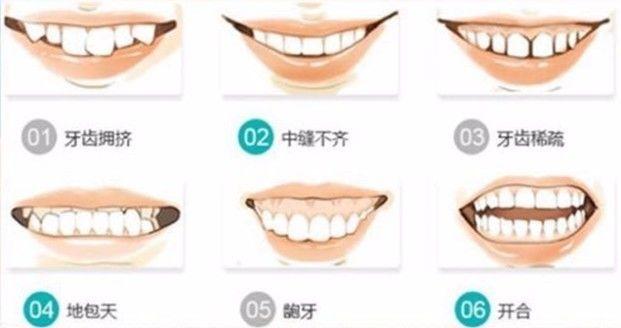 隐形矫正牙齿的效果好不好?