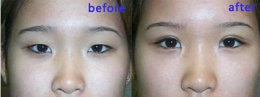 上眼皮松弛适合做哪种双眼皮?