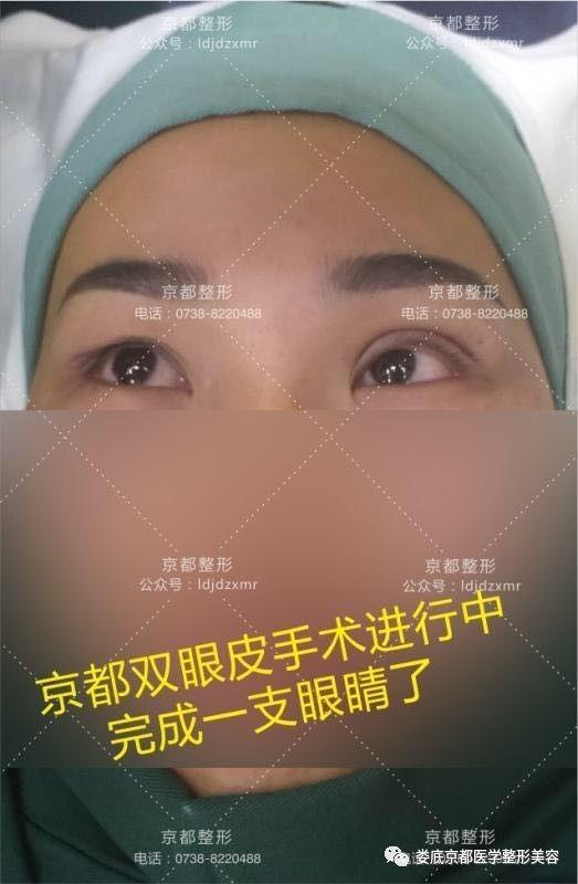 双眼皮修复贵不贵呢?