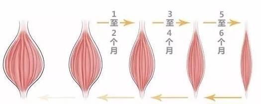 玻尿酸垫下巴的效果自然吗?