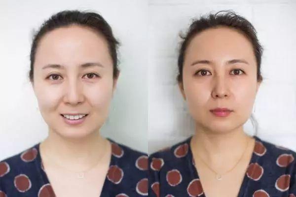 在绍兴华美整形美容医院做玻尿酸填充全脸需要多少支?