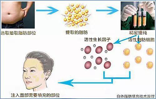 在西安邵锦弘医生整形医院做的自体脂肪面部填充后要注意哪些?