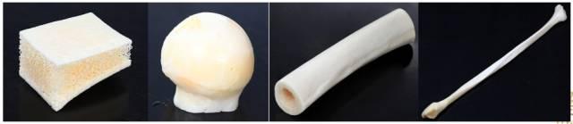 惠州瑞芙臣整形医院同种异体骨隆鼻效果到底好不好?