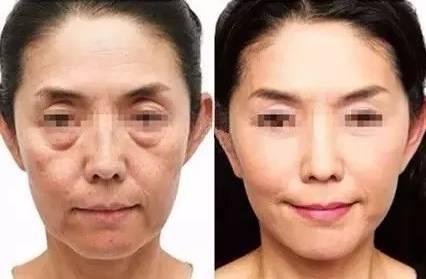 在上海长征医院整形外科可以做线雕面部提升吗?
