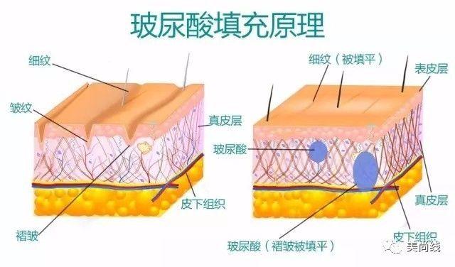 在哈尔滨美尚线医疗美容注射玻尿酸与瘦体蛋白除皱有何区别?