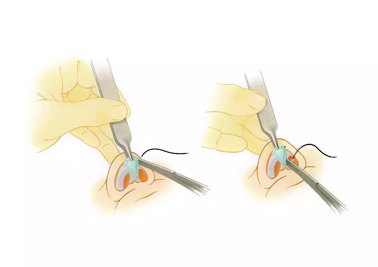 珠海科美医疗美容医院做耳软骨隆鼻恢复的时间是否特别长?