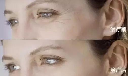 深圳米兰柏羽做去除眼角纹的手术效果好不好?