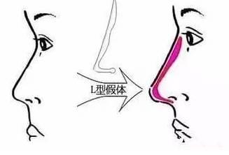 南方医科大学附属何贤纪念医院可以做复合隆鼻吗?