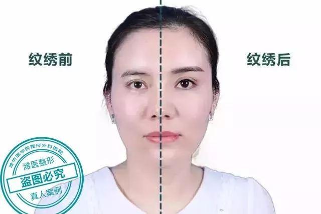 潍坊医学院整形医院做的半长期纹眉可以保持多久?