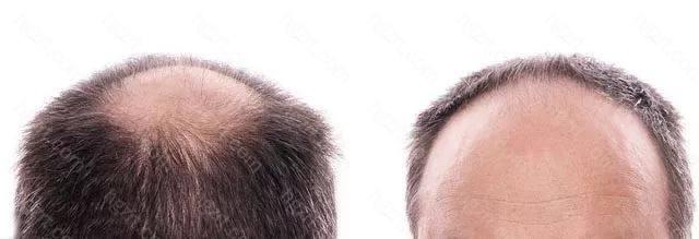 武汉大学中南医院整形科做头发移植真的有效果吗?