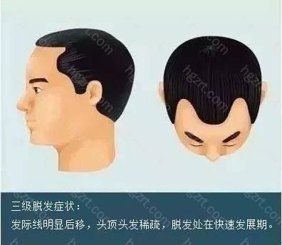 但是针对M型脱发的前额部分