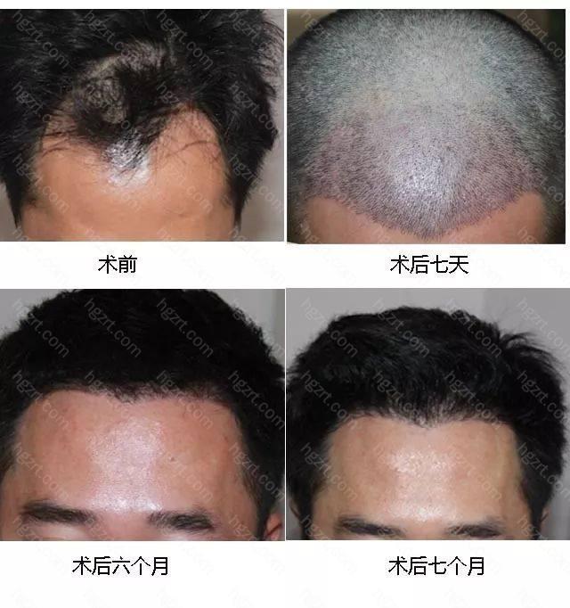 弘基FOREST活性毛发移植
