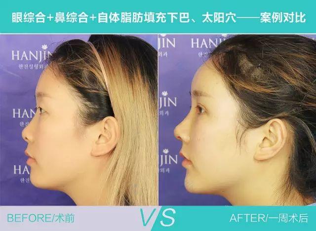 武汉韩辰整形医院做鼻综合是不是很贵呢?