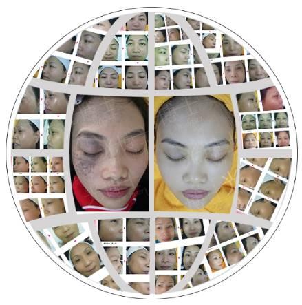 上海光博士医疗美容医院真的可以完全去除黄褐斑吗?