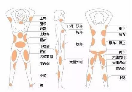 在上海真爱医院整形美容科适合哪些人进行吸脂?