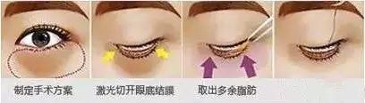 上海复旦大学附属中山医院整形外科去除眼袋可否特别疼痛呢?