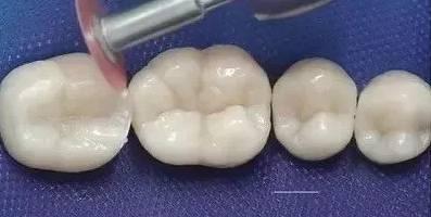 补牙的材料有哪些?