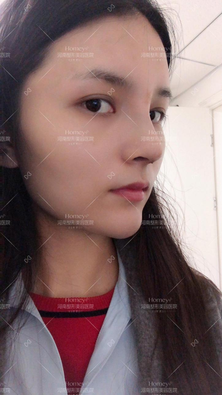 传统隆鼻和鼻综合的区别在哪?