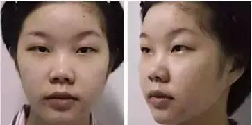 双眼皮和隆鼻可以同时做吗?