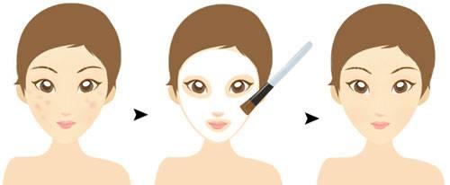 做光子嫩肤可以改善毛孔粗大吗?