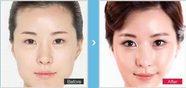 哪里塑造小V脸效果特别好?