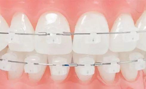 哪里做牙齿矫正的效果比较好?